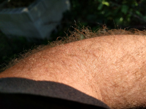 singed arm hairs