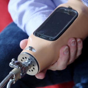 smartphone in prosthetic arm