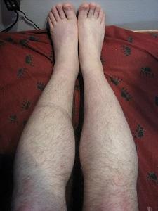left leg 2013.04.30