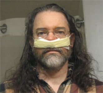 looking like Hannibal Lecter after my sinus surgery